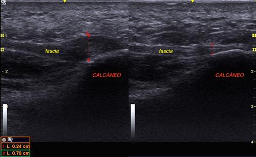 Vista ecográfica de una fascia plantar normal (Derecha) y una con fasciosis crónica (Izquierda). Se ve el aumento de grosor de la fascia dañada (0,7 cm) respecto a la sana (0,24 cm)