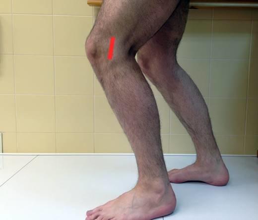 rodilla del corredor0