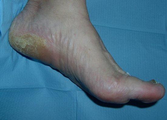 Durezas en los talones: tratamiento y remedios