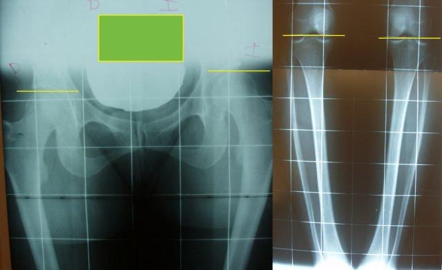 No obstante no siempre que exista una heterometría es necesario tratamiento ortopédico