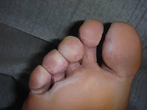 mal olor de pies, consejos para remediarlo