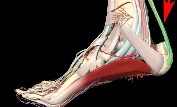 Me duele el tendón de Aquiles ¿Tengo una tendinopatía?